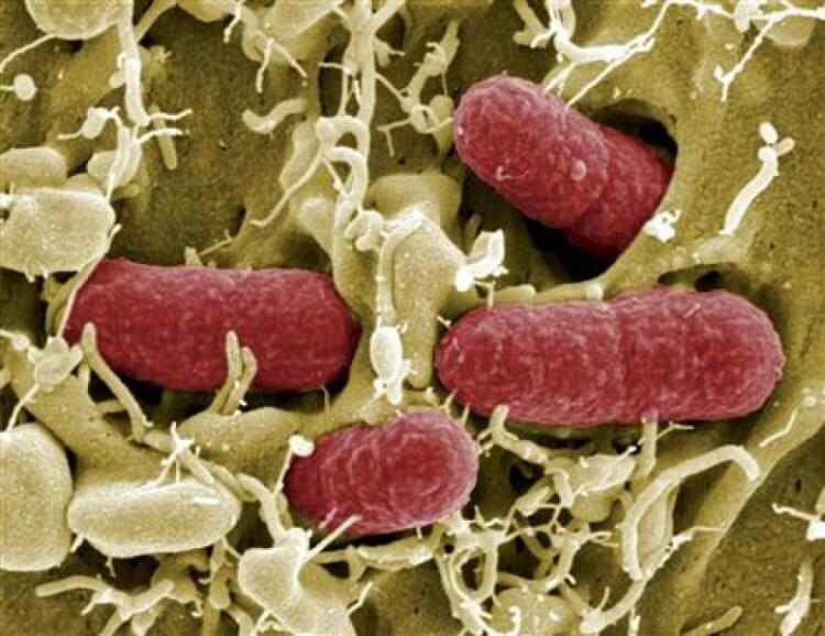 Infection bactérienne